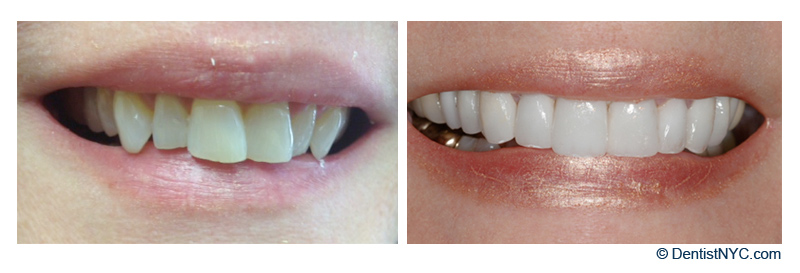 Teeth Straightening
